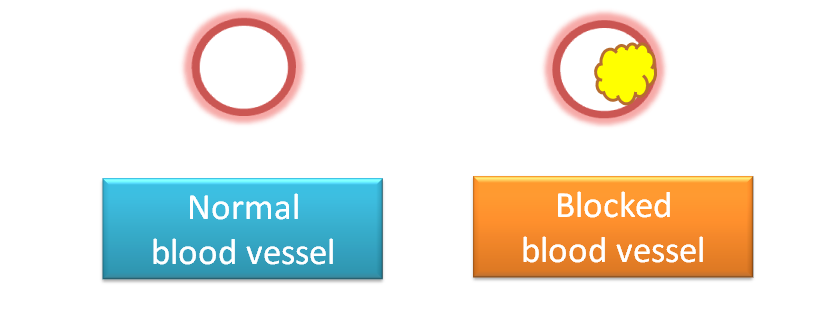 Blocking of blood vessel by formation of atheroma
