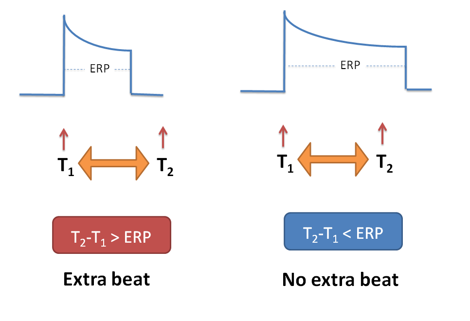 No extra heart beat can be observed if impulse reaches after ERP